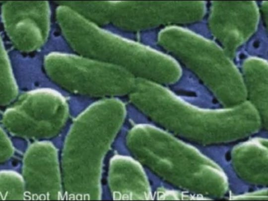 Vibrio vulnificus, sometimes called 'flesh-eating bacteria,' shown here under a microscope.