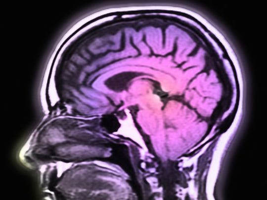 New research has identified more than 100 places in human DNA linked to the risk of developing schizophrenia.