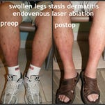 Stasis dermatitis is inflammation of the skin of the leg caused by blood pooling in the veins. Before and after treatment photos are shown.