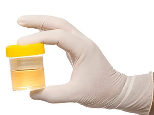 Welfare-Drug-Testing