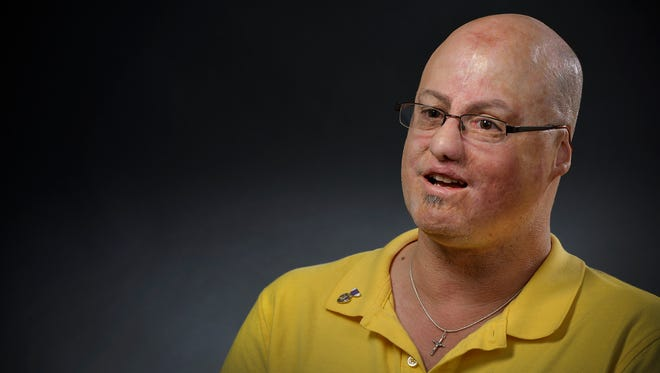 Freeport veteran Mike Mills talks Thursday, Dec. 10 about the 56 surgeries he's endured after he nearly lost his life from his wounds in Iraq in 2005. Now, he's started an organization that helps other combat-wounded vets.