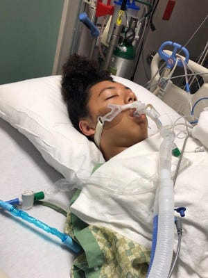 17-year-old Bethany Phillips of Shalimar, has been hospitalized since Saturday after a personal watercraft crash in Poquito Bayou.