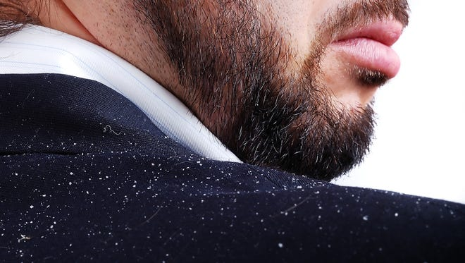 Dandruff can be an embarassing condition, but can usually be controlled.