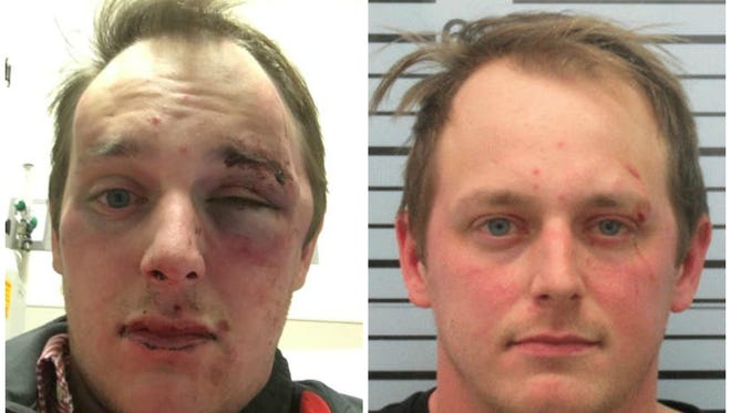 A photo released by the Chris Barnes family after he was allegedly assaulted by a police officer, next to the booking photo taken after the altercation.