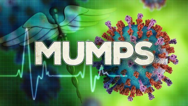 Mumps.
