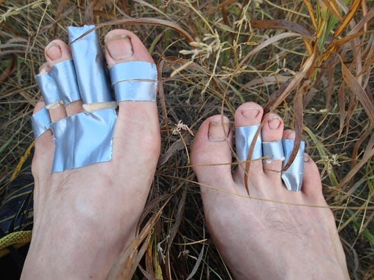 Ken Ilgunas managed blisters with duct tape on his hike from Alberta to Texas.