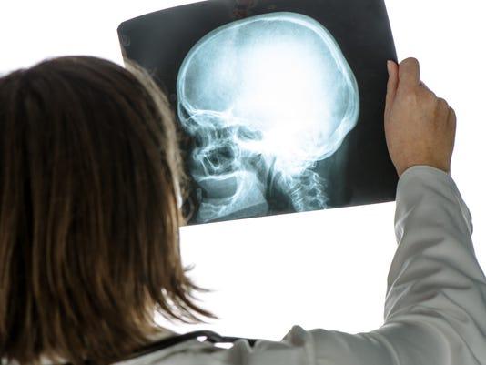 Doctor analyzing x-ray of skull