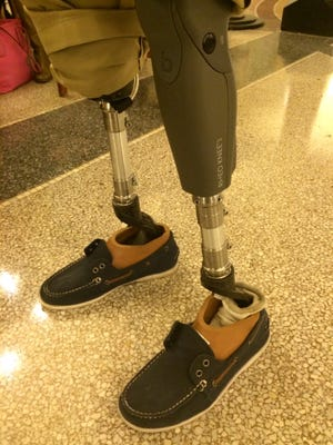 Moise Brutus traveled to Iowa Dec. 7 to speak about privatized Medicaid management on behalf of WellCare.    These are his feet that he says are superior to the former prosthetic limbs he received when the program was managed by Florida.