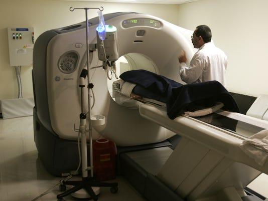 mental fog breast cancer brain scan chemotherapy