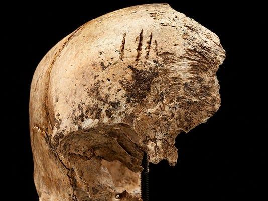 Jamestown skull