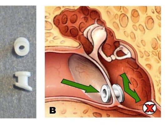 Tympanostomy tubes