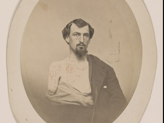 civil war john chase
