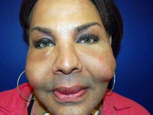 illegal plastic surgery