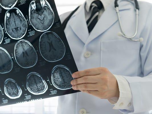 doctor brain mri