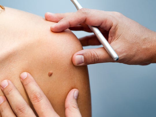 Skin cancer is the most common form of cancer in the United States, yet it is the most preventable.