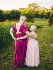 Mother-of-three Kristi Tavenner has been battling  breast cancer and her 7 year-old daughter, Rose suffers from alopecia.  Rose began publicly going bald when all of her hair fell out a few years ago. Tavenner said her young  daughter helped her to be brave when her own hair fell out during  chemotherapy treatments.  Here they pose for portraits together at Wilson Family Farm in College Grove, Tenn.