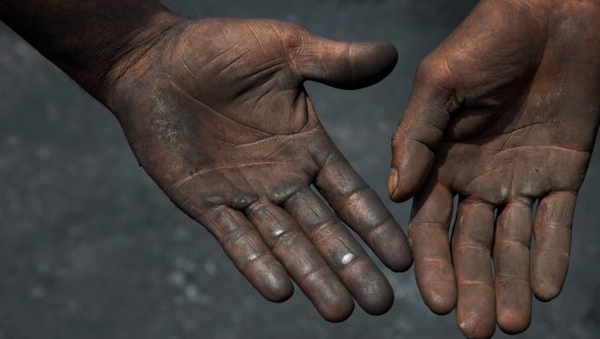 Contractual laborers who sweep and collect petroleum coke for transport to factories display their hands in Rampur, about about 130 miles from New Delhi, India.