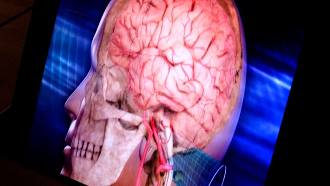 Traumatic brain injuries can affect victims of domestic violence as much as soldiers and sports figures.