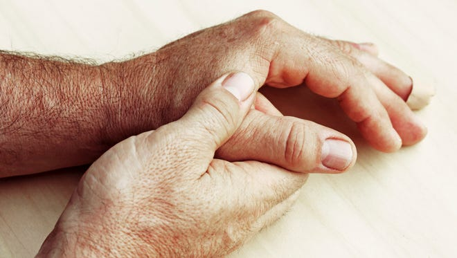 Early diagnosis and treatment can dramatically improved the outlook for people with arthritis