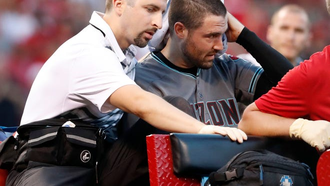 Arizona Diamondbacks starting pitcher Robbie Ray holds a towel to his head as he is carried away on a cart after being hit in the head by a line drive back to the mound by St. Louis Cardinals' Luke Voit during the second inning of a baseball game Friday, July 28, 2017, in St. Louis. (AP Photo/Jeff Roberson)
