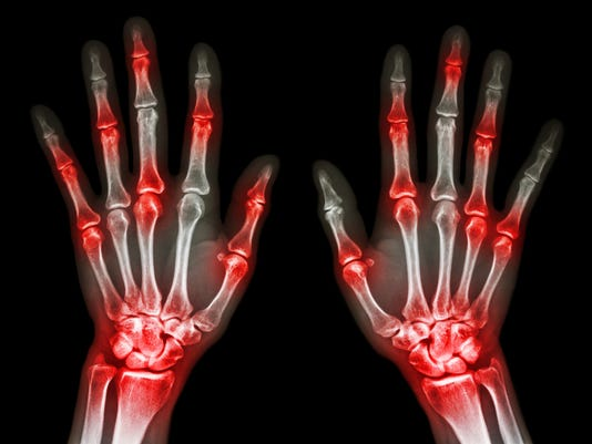 arthritis at multiple joint of hand (Gout,Rheumatoid)