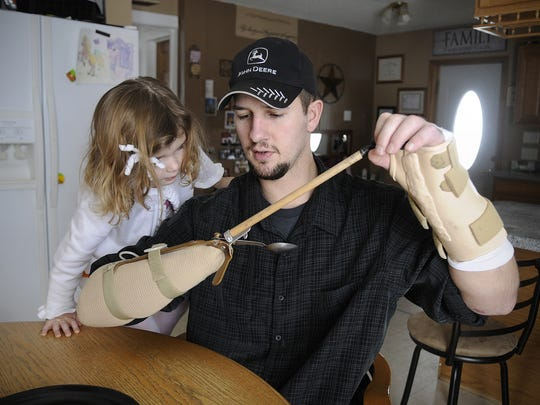 Madison Houdek watches as her father, Jamie, demonstrates tools he uses to eat and use a computer tablet since losing his right hand to a corn picker in November 2013 on the 60-acre hobby farm where he raises beef cattle near Little Falls, MN.