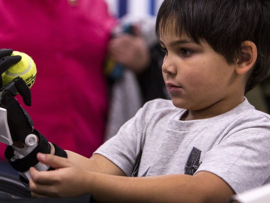 Jacob Taggart, 5, tests out his new prosthetic hand