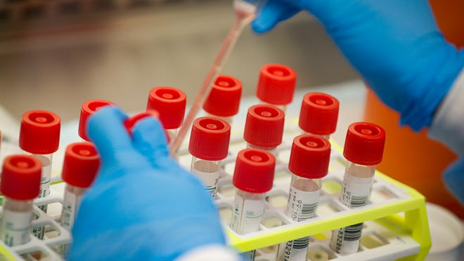 FILE - In this Wednesday, March 11, 2020 file photo, a technician prepares COVID-19 coronavirus patient samples for testing at a laboratory in New York's Long Island.
