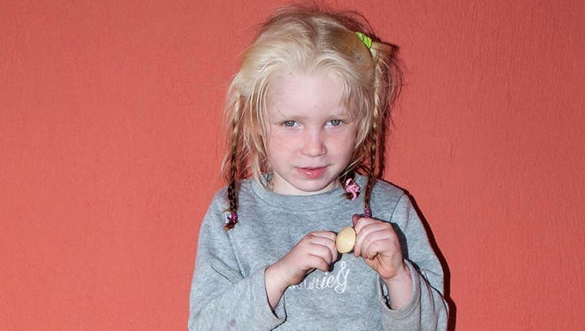 This photo released by Greek Police shows a four-year-old girl found living in a Gypsy camp with a couple arrested and charged with abducting her from her birth parents.