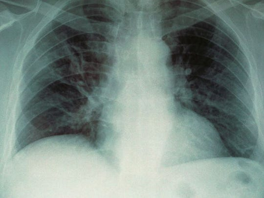 An X-Ray image of the lungs of a person with Legionnaires' disease.