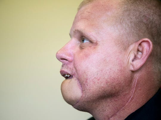 Dr. Anthony Anfuso reconstructed Samuel Tipton's lower lip and chin using tisue from his left arm. Tipton had cancer, which left him in constant pain and destroyed his lip and chin. Tipton says the surgery has turned his life around.