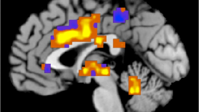 A new study shows brain damage exists even if people don't notice symptoms.