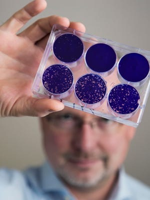 In this Aug. 8, 2013 photo provided by Duke University, Dr. Matthias Gromeier holds samples of the modified poliovirus he developed to attack glioblastoma brain tumor cells at Duke in Durham, N.C. One of the world's most dreaded viruses has been turned into an immune system therapy to fight deadly brain tumors. Survival was better than expected for patients in a small study treated with the modified poliovirus, which helped their bodies attack their cancer, doctors reported on Tuesday, June 26, 2018.