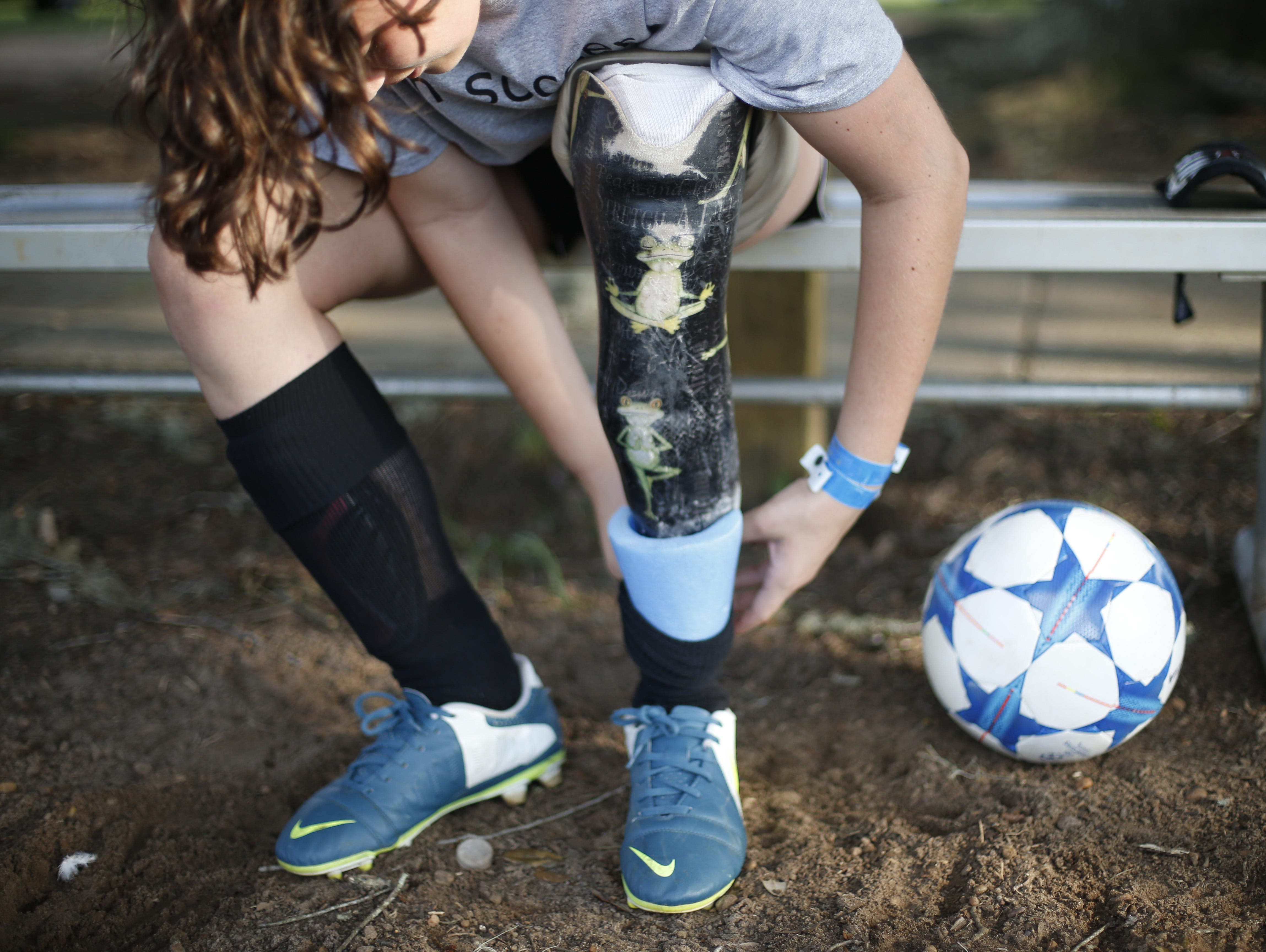 Erica Silvey, 13, covers the ankle of her prosthetic leg with a portion of a pool noodle, a homemade device fashioned to cover the titanium portion of her leg and prevent her from hurting other players during competition.