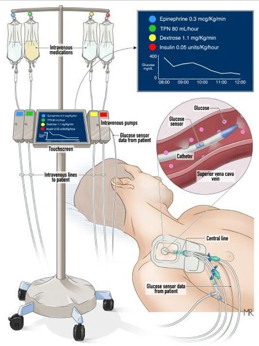 636078048625146166-Artificial-pancreas-graphic.JPG