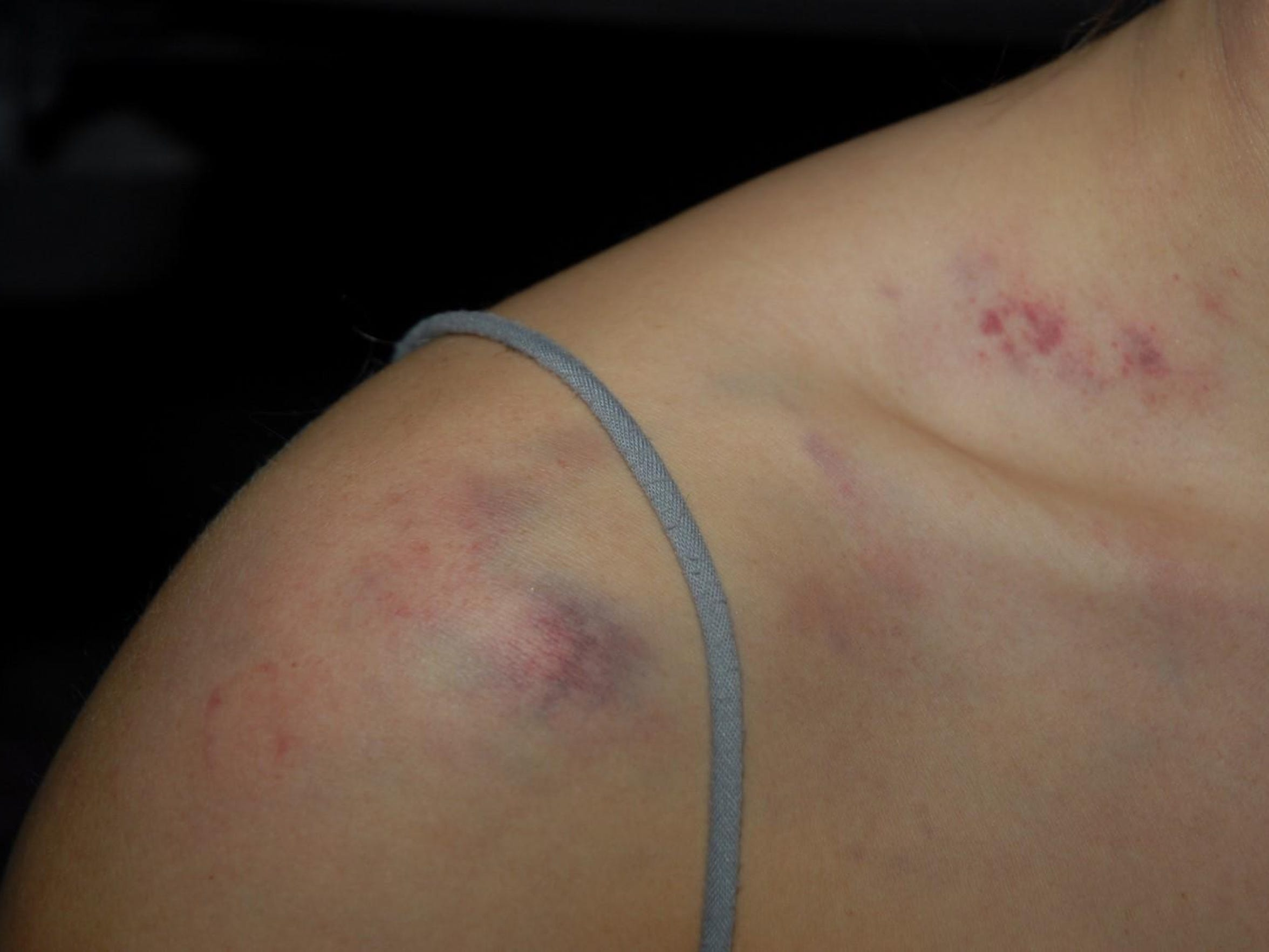 The bruises that began to appear on Tiffany Allison's shoulder after her then-boyfriend beat her in September 2009.