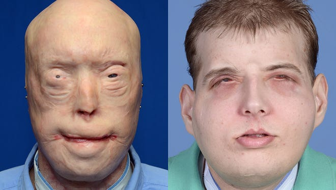 This combination of photos provided by the New York University Langone Medical Center shows Patrick Hardison before and after his facial transplant surgery.