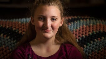 Amanda Bartlett of Newport, Vt., was born with a severe cleft lip and palate. The 12-year-old's first surgeries came when she was a baby.