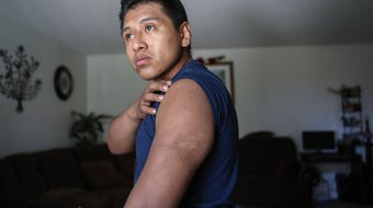 Jesus Guzman talks about being attacked by a police dog after submitting to police orders.