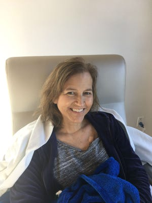 Mimi O'Leary's hair after three chemotherapy treatments while wearing the DigniCap at the Scully-Welsh Cancer Center in Vero Beach.