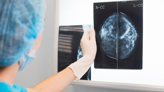 An English woman said she was diagnosed with breast cancer after noticing an abnormality at a thermal camera room. The FDA has warned against using thermography as a screening method for breast cancer.