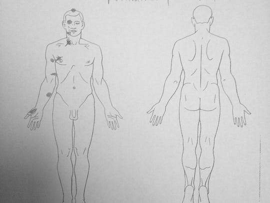 Autopsy diagram shows where Michael Brown was shot. This is from the family's private autopsy examination.