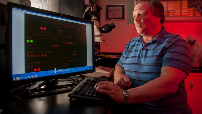 Dr. Robert Nagele, a Rowan School of Osteopathic Medicine professor and cell biologist, displays an image of an highly magnified microarray, a slide dotted with tiny proteins that light up in reaction to certain autoantibodies, that has been coated with blood to test for very early stages of Alzheimer's disease. The red dots on the screen indicate the presence of Alzheimer's disease biomarkers in the blood. 03.25.15