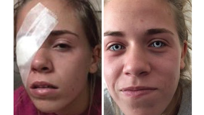 Leah Carpenter, now 17, of St. Clair Shores, Mich., damaged her cornea after buying colored contact lenses without a prescription.