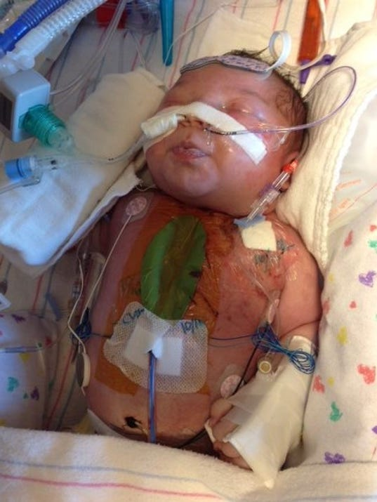 Lives of babies born with heart defects celebrated