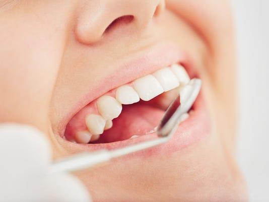 Checking up teeth