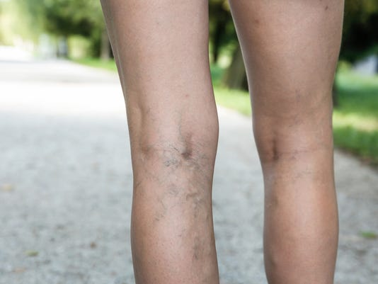 UVM Medical Center - Varicose Veins