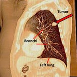 A needle is inserted into a lung tumor to test for cancer.