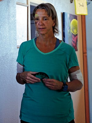 Karen Williams is photographed on Monday, June 27, 2016 in Los Alamos, N.M.   Williams, a marathon runner who was attacked by a black bear is advocating to change the state law that forced wild officials to kill the animal. Williams says that the female bear was acting on its protective instincts to defend its cubs when it charged and mauled her June 18 in the Valles Caldera National Preserve.