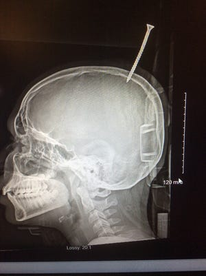 This x-ray shows a 6-inch screw lodged in the skull of a 13-year-old Salisbury boy.